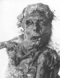 bog-body